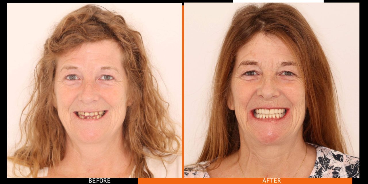 "Woman Suffering from Debilitating Condition turns to 3Dental Clondalkin for ""Life Changing"" Treatment"