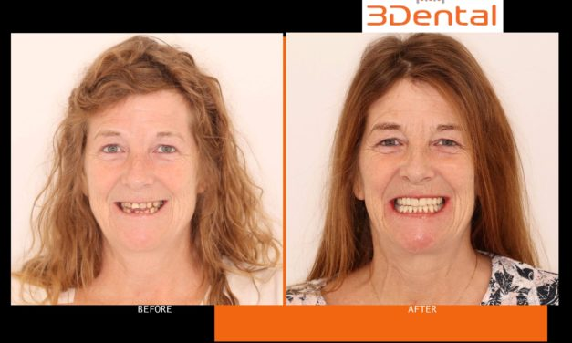 """Woman Suffering from Debilitating Condition turns to 3Dental Clondalkin for """"Life Changing"""" Treatment"""
