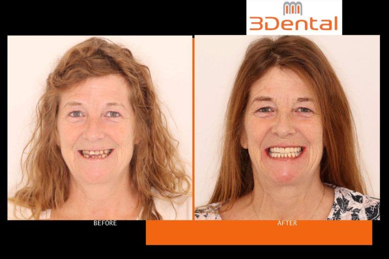 3 Dental Clondalkin Dentist
